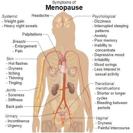 Pengertian, Penyebab, Jenis, Tanda dan Gejala Menopause